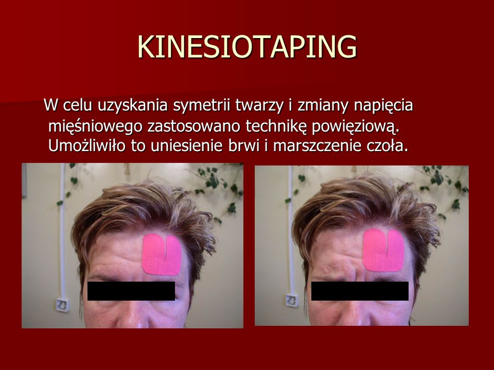 KINESIOTAPING W celu uzyskania symetrii twarzy i zmiany napięcia mięśniowego zastosowano technikę powięziową.