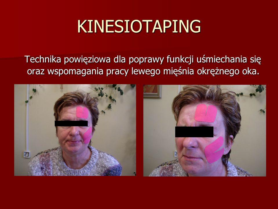 KINESIOTAPING Technika powięziowa dla poprawy funkcji uśmiechania się oraz wspomagania pracy lewego mięśnia okrężnego oka.