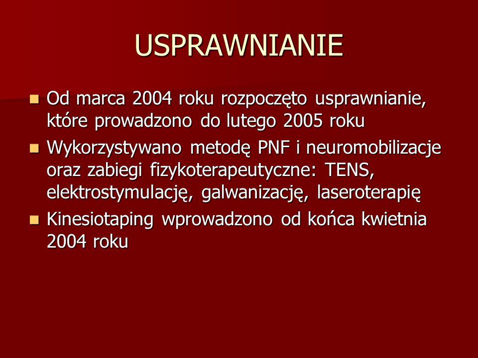 USPRAWNIANIE Od marca 2004 roku rozpoczęto usprawnianie, które prowadzono do lutego 2005 roku Od marca 2004 roku rozpoczęto usprawnianie, które prowadzono do lutego 2005 roku Wykorzystywano metodę PNF i neuromobilizacje oraz zabiegi fizykoterapeutyczne: TENS, elektrostymulację, galwanizację, laseroterapię Wykorzystywano metodę PNF i neuromobilizacje oraz zabiegi fizykoterapeutyczne: TENS, elektrostymulację, galwanizację, laseroterapię Kinesiotaping wprowadzono od końca kwietnia 2004 roku Kinesiotaping wprowadzono od końca kwietnia 2004 roku