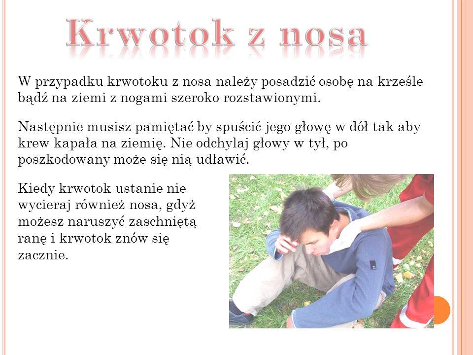 W przypadku krwotoku z nosa należy posadzić osobę na krześle bądź na ziemi z nogami szeroko rozstawionymi.