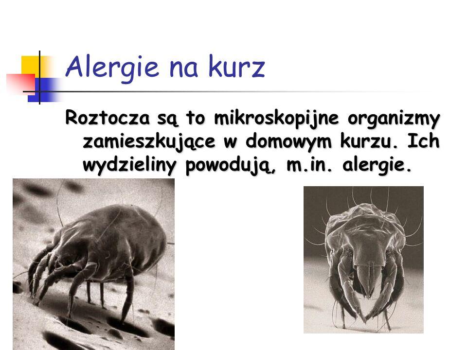 Alergie na kurz Roztocza są to mikroskopijne organizmy zamieszkujące w domowym kurzu. Ich wydzieliny powodują, m.in. alergie.
