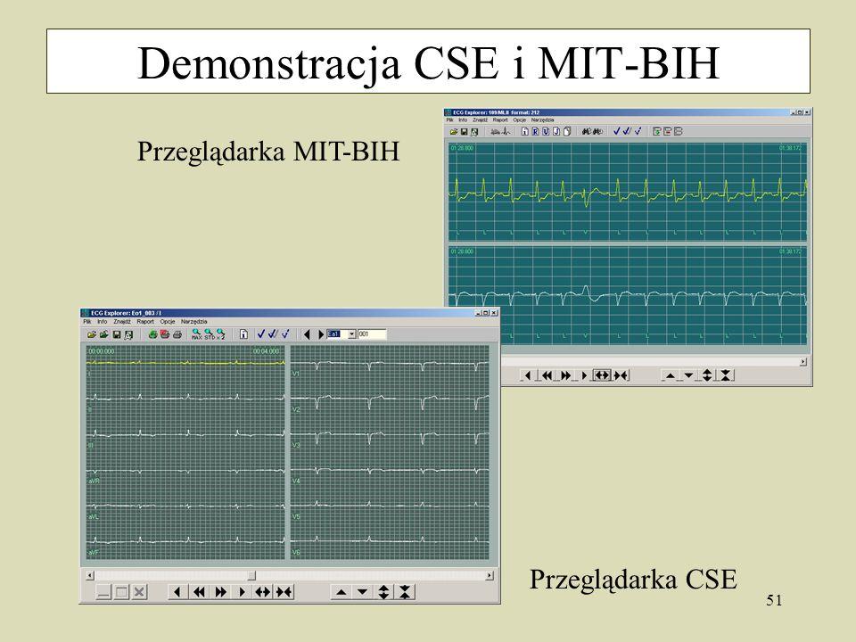 51 Demonstracja CSE i MIT-BIH Przeglądarka MIT-BIH Przeglądarka CSE