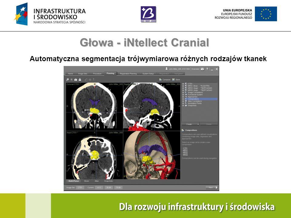 Navigation Training & Education Internal Use Only Głowa - iNtellect Cranial Automatyczna segmentacja trójwymiarowa różnych rodzajów tkanek