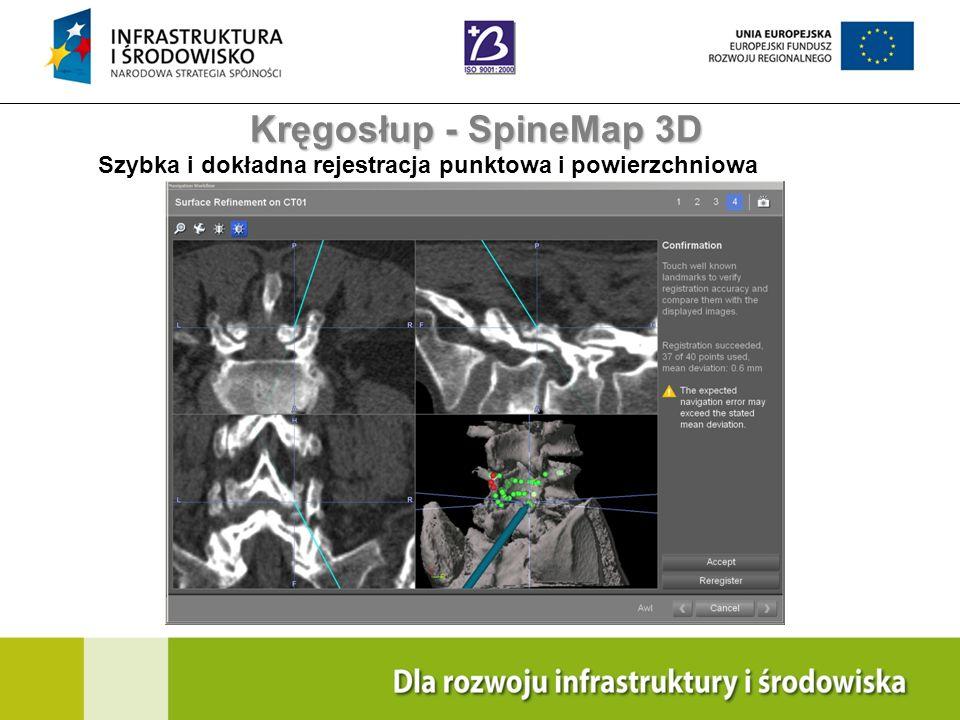 Navigation Training & Education Internal Use Only Kręgosłup - SpineMap 3D Szybka i dokładna rejestracja punktowa i powierzchniowa