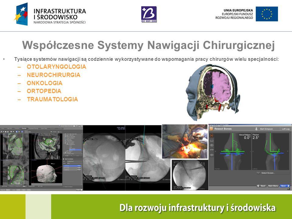 Navigation Training & Education Internal Use Only Współczesne Systemy Nawigacji Chirurgicznej Tysiące systemów nawigacji są codziennie wykorzystywane