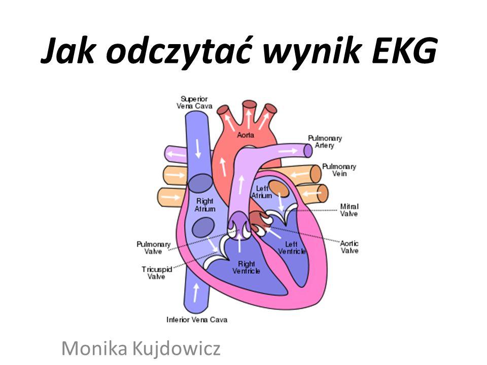 Jak odczytać wynik EKG Monika Kujdowicz