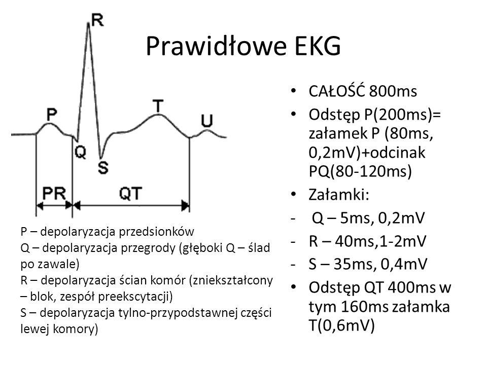 Prawidłowe EKG CAŁOŚĆ 800ms Odstęp P(200ms)= załamek P (80ms, 0,2mV)+odcinak PQ(80-120ms) Załamki: - Q – 5ms, 0,2mV -R – 40ms,1-2mV -S – 35ms, 0,4mV O