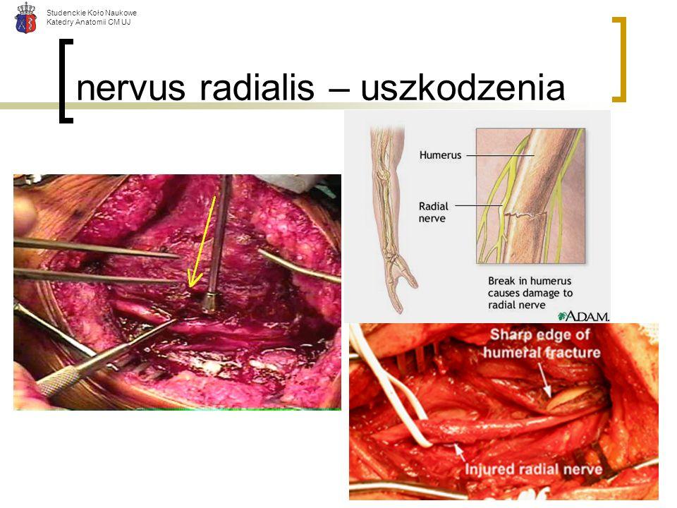 Studenckie Koło Naukowe Katedry Anatomii CM UJ nervus radialis – uszkodzenia