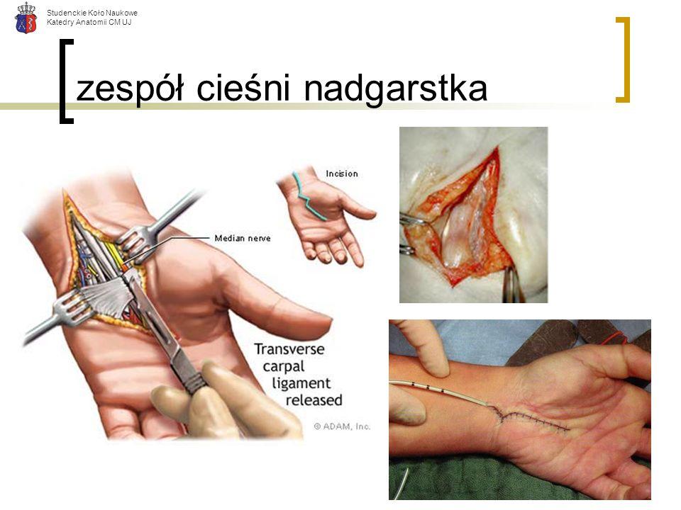 Studenckie Koło Naukowe Katedry Anatomii CM UJ zespół cieśni nadgarstka