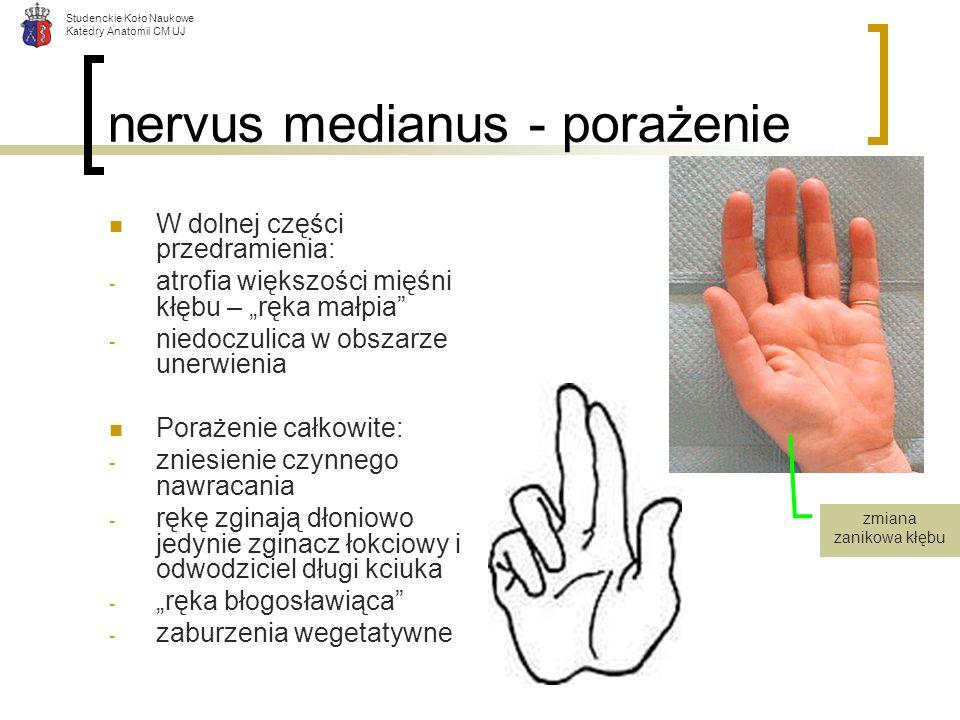 Studenckie Koło Naukowe Katedry Anatomii CM UJ nervus medianus - porażenie W dolnej części przedramienia: - atrofia większości mięśni kłębu – ręka mał