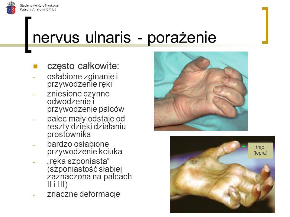 Studenckie Koło Naukowe Katedry Anatomii CM UJ nervus ulnaris - porażenie często całkowite: - osłabione zginanie i przywodzenie ręki - zniesione czynn