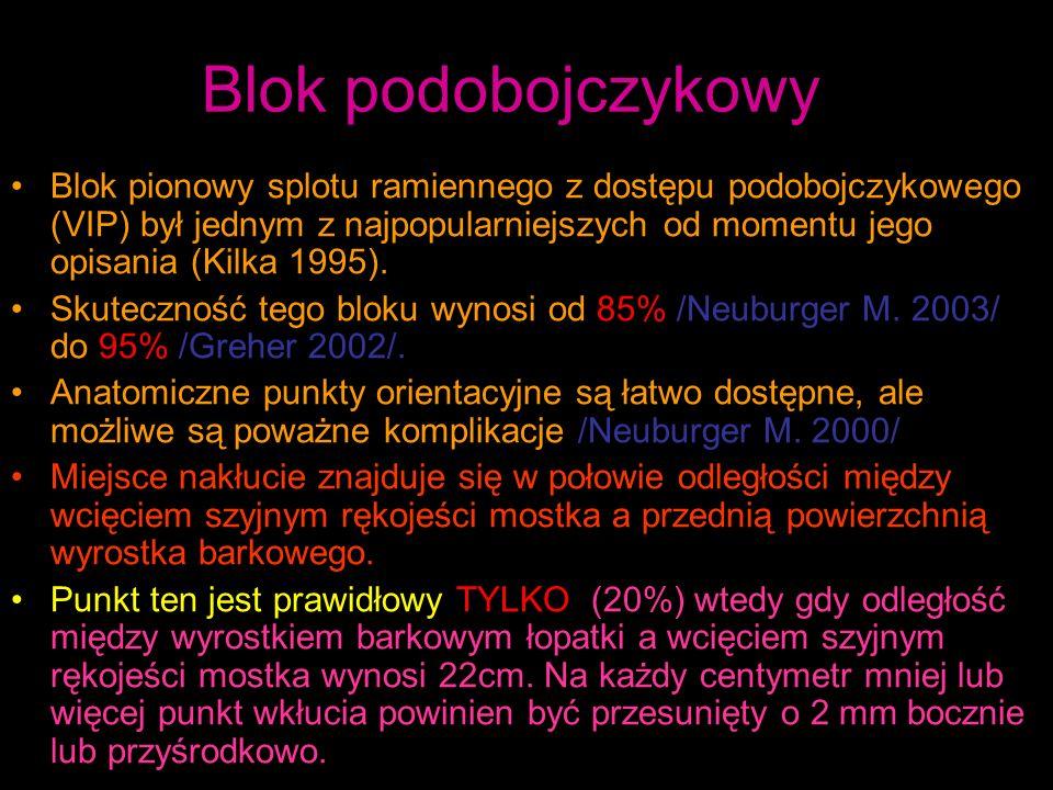 Blok podobojczykowy Blok pionowy splotu ramiennego z dostępu podobojczykowego (VIP) był jednym z najpopularniejszych od momentu jego opisania (Kilka 1995).