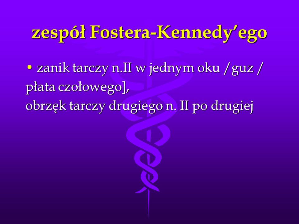 zespół Fostera-Kennedyego zanik tarczy n.II w jednym oku /guz /zanik tarczy n.II w jednym oku /guz / płata czołowego], obrzęk tarczy drugiego n. II po