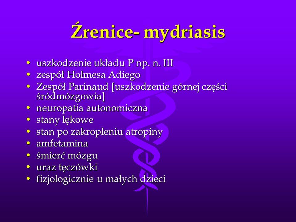 Źrenice- mydriasis uszkodzenie układu P np. n. IIIuszkodzenie układu P np. n. III zespół Holmesa Adiegozespół Holmesa Adiego Zespół Parinaud [uszkodze