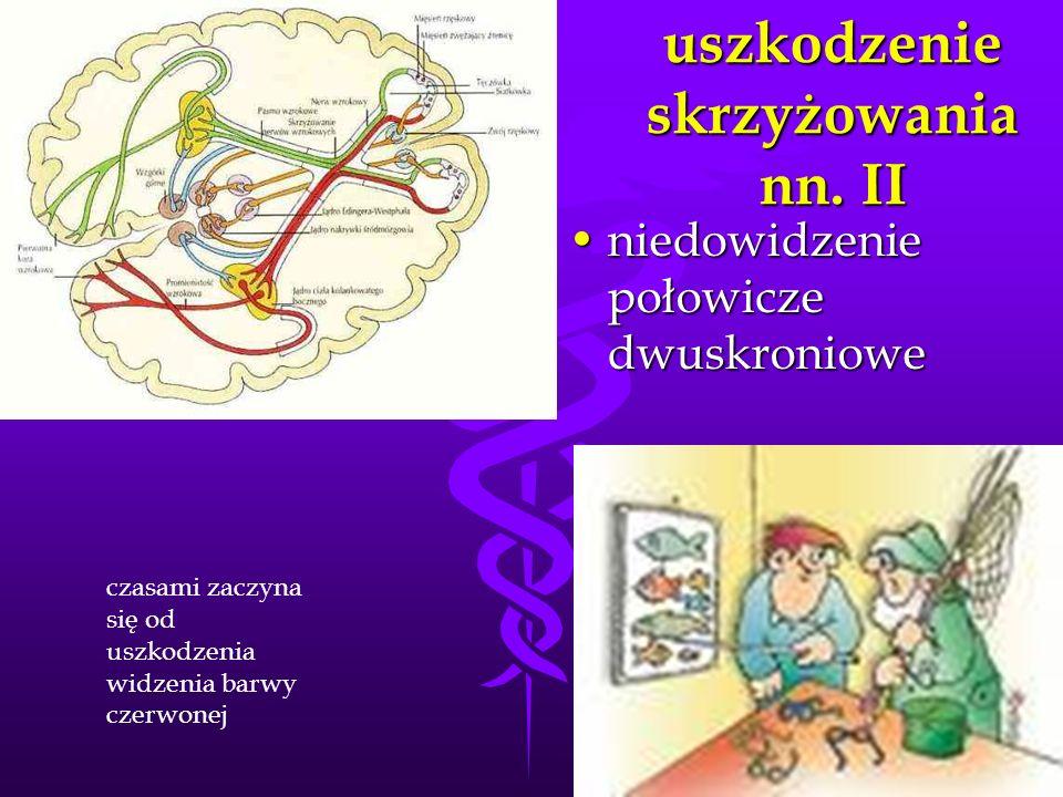 uszkodzenie skrzyżowania nn. II niedowidzenie połowicze dwuskronioweniedowidzenie połowicze dwuskroniowe czasami zaczyna się od uszkodzenia widzenia b