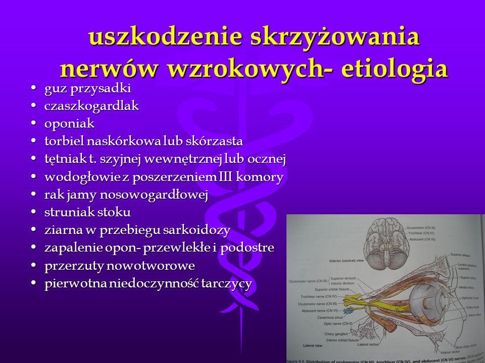 uszkodzenie skrzyżowania nerwów wzrokowych- etiologia guz przysadkiguz przysadki czaszkogardlakczaszkogardlak oponiakoponiak torbiel naskórkowa lub sk