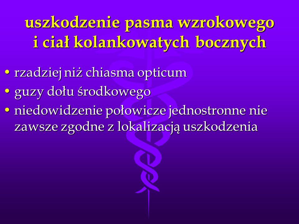 uszkodzenie pasma wzrokowego i ciał kolankowatych bocznych rzadziej niż chiasma opticumrzadziej niż chiasma opticum guzy dołu środkowegoguzy dołu środ