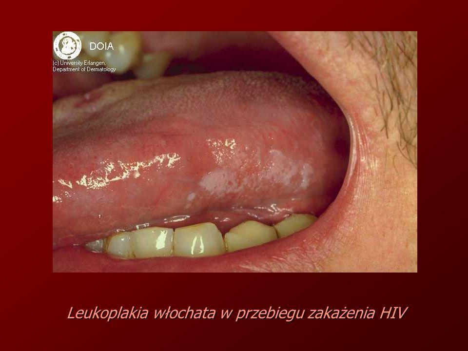 Leukoplakia włochata w przebiegu zakażenia HIV