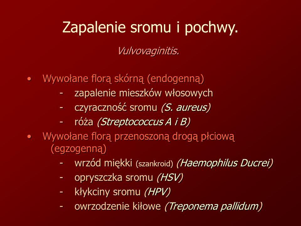 Zapalenie sromu i pochwy.Vulvovaginitis.