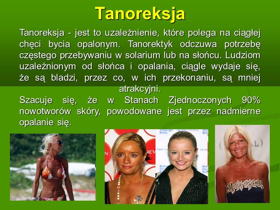 Tanoreksja Tanoreksja - jest to uzależnienie, które polega na ciągłej chęci bycia opalonym.