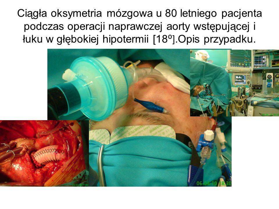 Ciągła oksymetria mózgowa u 80 letniego pacjenta podczas operacji naprawczej aorty wstępującej i łuku w głębokiej hipotermii [18 ]. Opis przypadku.