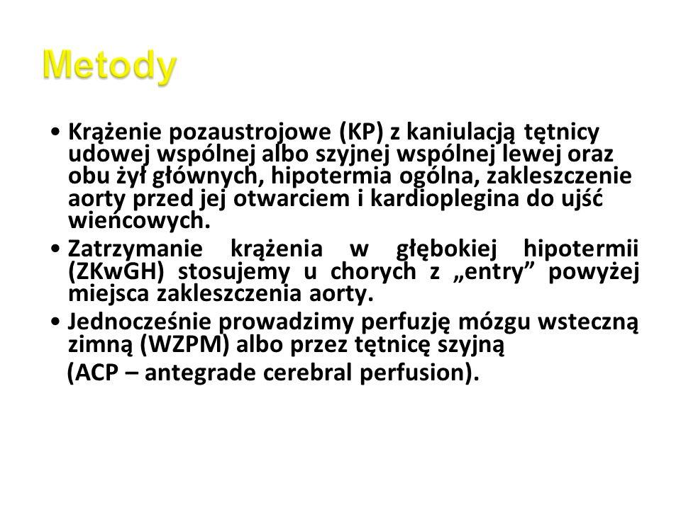 Krążenie pozaustrojowe (KP) z kaniulacją tętnicy udowej wspólnej albo szyjnej wspólnej lewej oraz obu żył głównych, hipotermia ogólna, zakleszczenie a