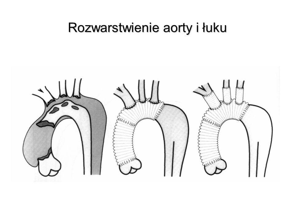 Rozwarstwienie aorty i łuku