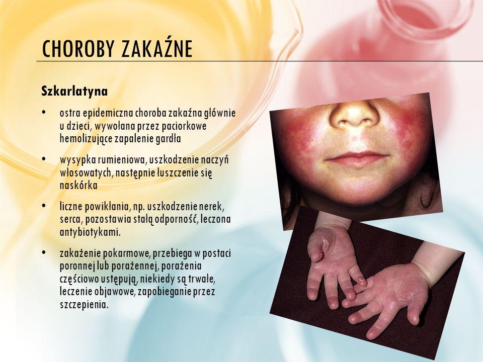 CHOROBY ZAKAŹNE Odra wirusowa choroba epidemiczna, bardzo zaraźliwa, głównie u dzieci gorączka, nieżyt górnych dróg oddechowych, grubo plamista wysypka, przejściowe osłabienie odporności ogólne pozostawia stałą odporność.