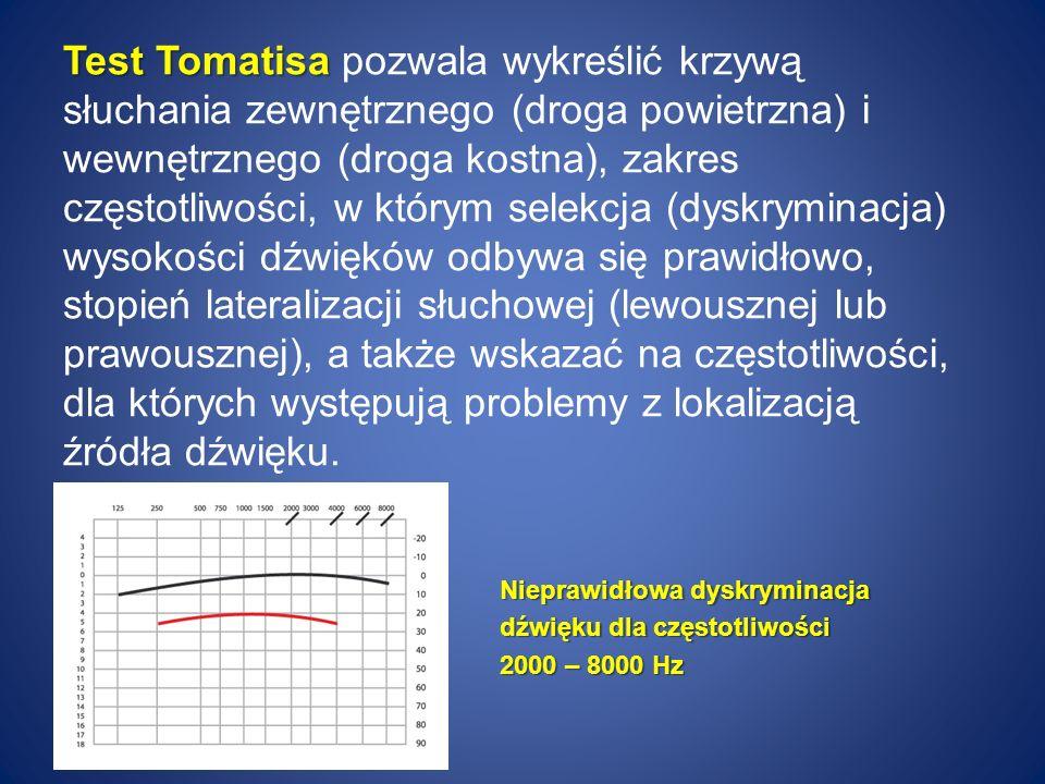 Test Tomatisa Test Tomatisa pozwala wykreślić krzywą słuchania zewnętrznego (droga powietrzna) i wewnętrznego (droga kostna), zakres częstotliwości, w