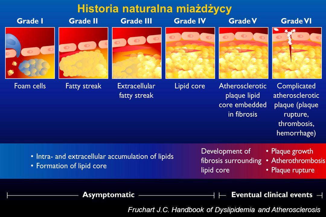 Refundacja - ezetimib na P Hipercholesterolemia LDL-C >130 mg/dl utrzymu- jąca się pomimo terapii statynami w przypadku: Przebytego zawału serca Przebytej rewaskularyzacji wieńcowej (PCI lub CABG) Przebytej rewaskularyzacji obwodowej Przebytej amputacji obwodowej z powodu miażdżycy Hipercholesterolemii rodzinnej