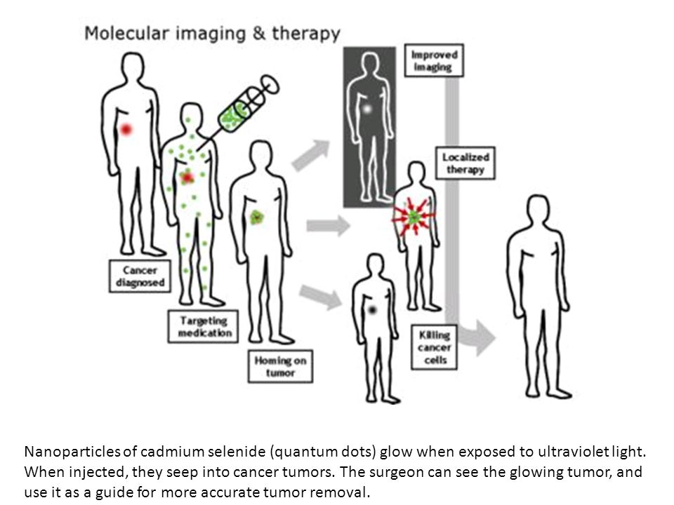 Nanoparticles of cadmium selenide (quantum dots) glow when exposed to ultraviolet light. When injected, they seep into cancer tumors. The surgeon can