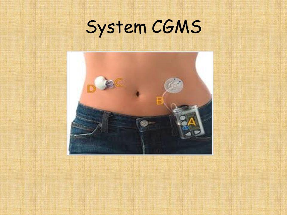 System CGMS
