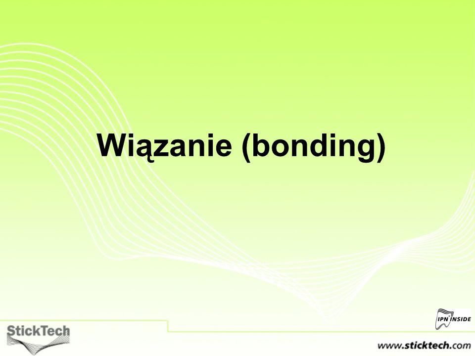 Wiązanie (bonding)