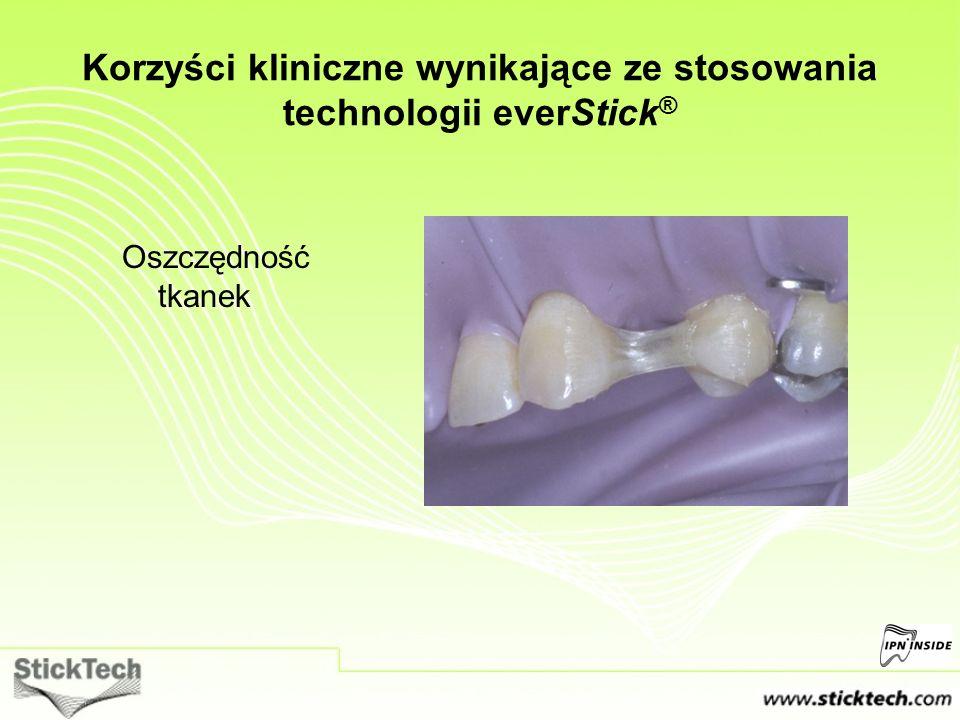 Korzyści kliniczne wynikające ze stosowania technologii everStick ® Oszczędność tkanek