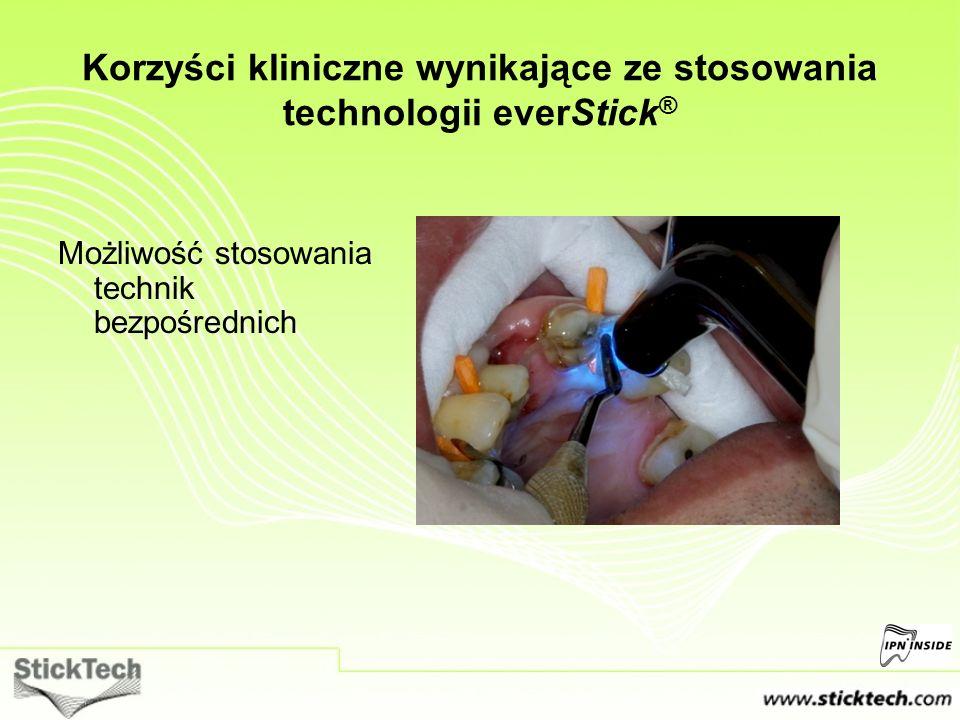 Możliwość stosowania technik bezpośrednich Korzyści kliniczne wynikające ze stosowania technologii everStick ®