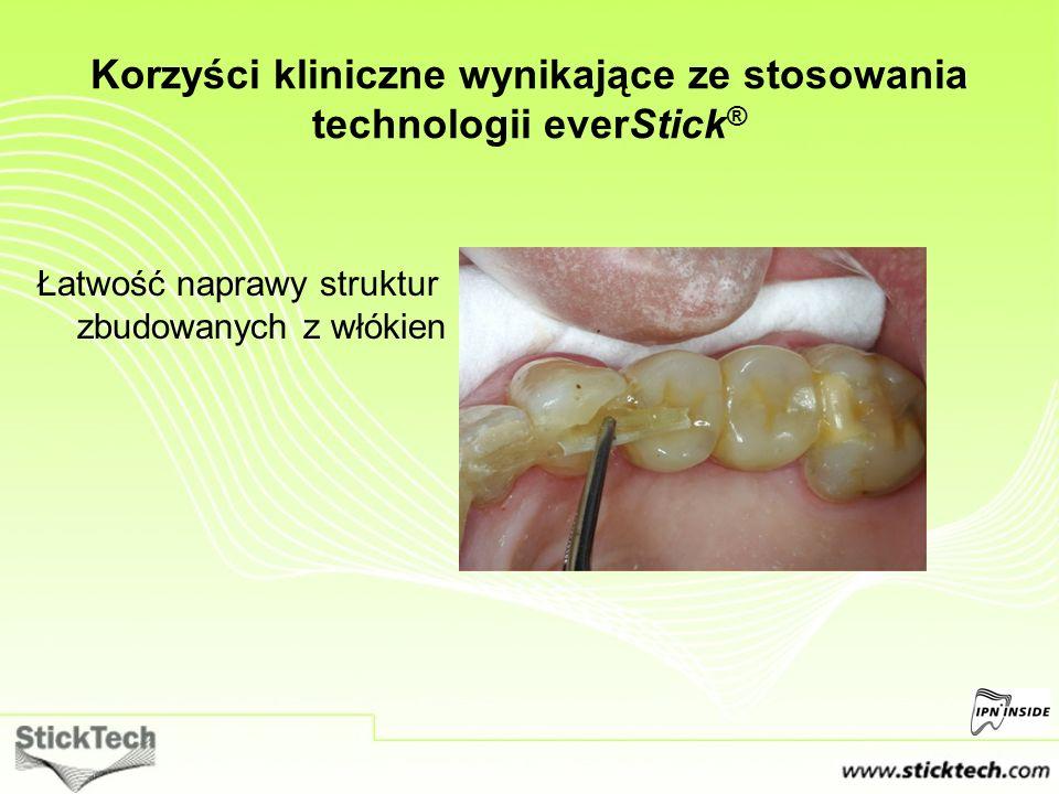Łatwość naprawy struktur zbudowanych z włókien Korzyści kliniczne wynikające ze stosowania technologii everStick ®