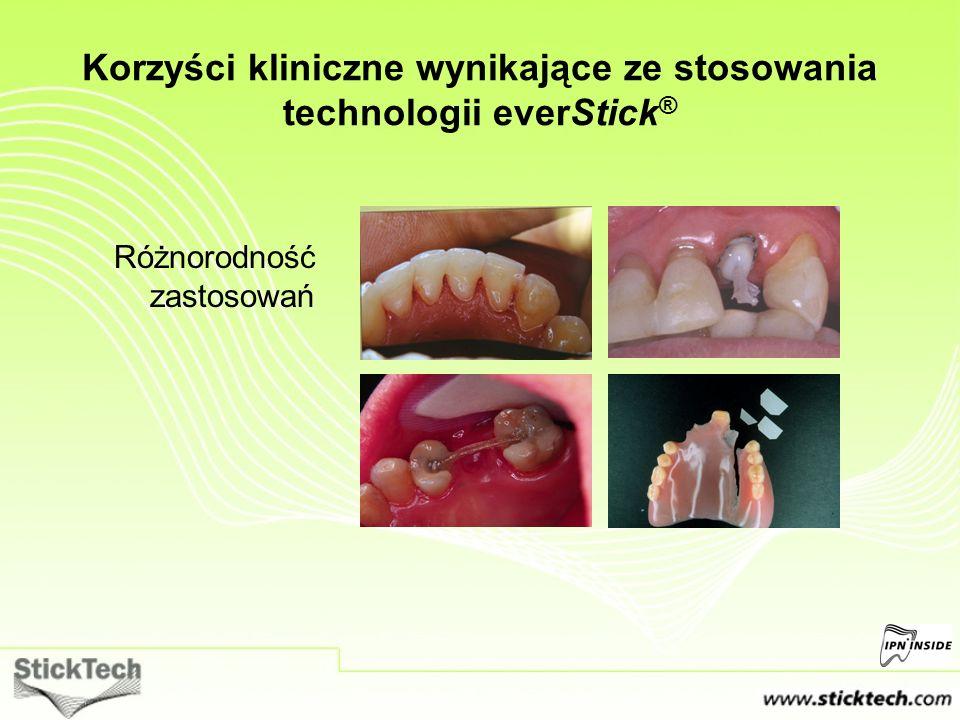Różnorodność zastosowań Korzyści kliniczne wynikające ze stosowania technologii everStick ®