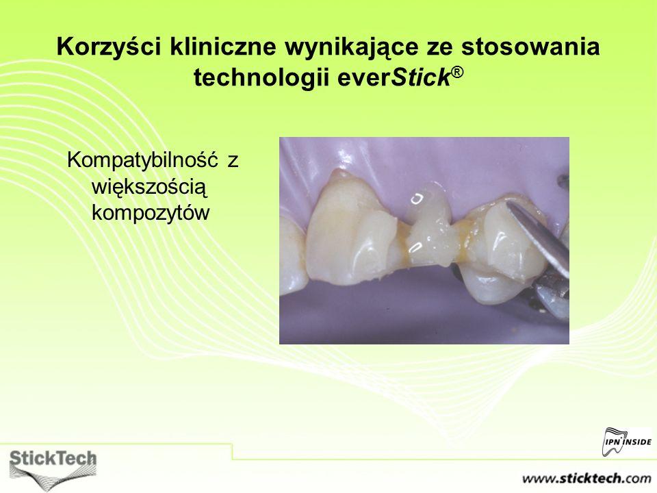 Kompatybilność z większością kompozytów Korzyści kliniczne wynikające ze stosowania technologii everStick ®