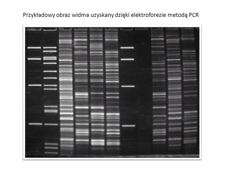 Przykładowy obraz widma uzyskany dzięki elektroforezie metodą PCR