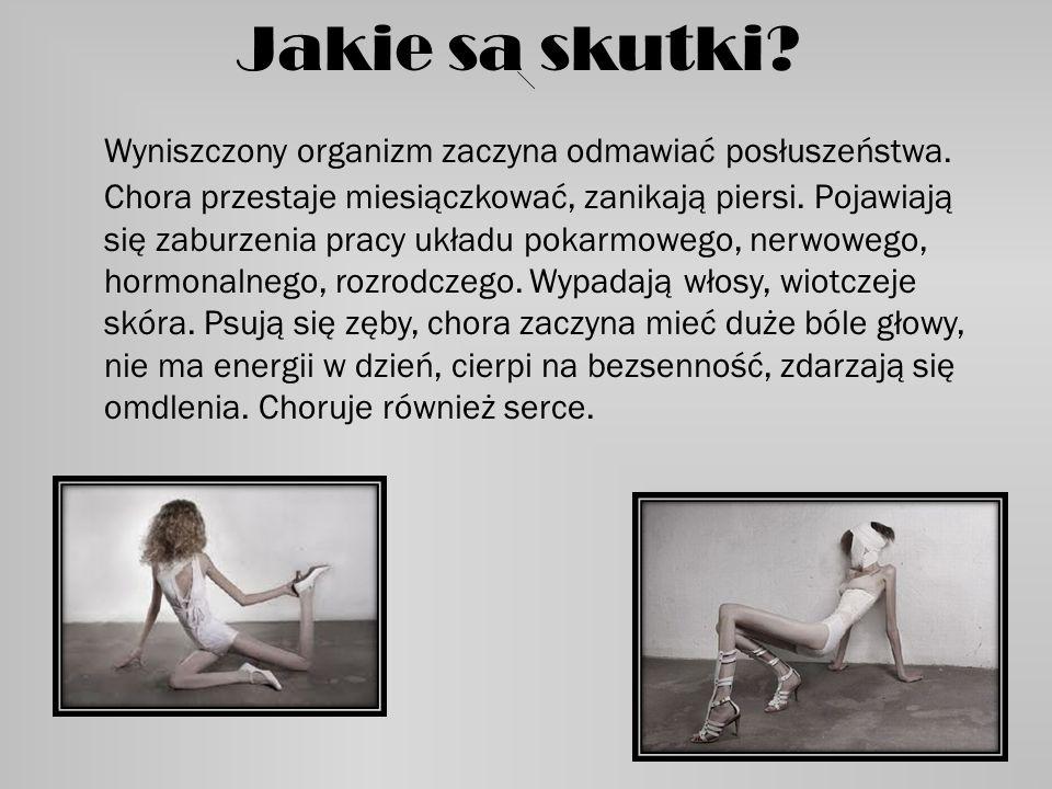 Isabelle Caro Isabelle Caro to modelka-anorektyczka, która chorowała przez kilkanaście lat. Była zaangażowana w walkę przeciw tej chorobie. Stała się