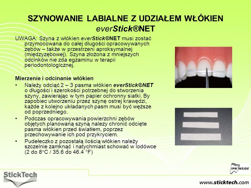 SZYNOWANIE LABIALNE Z UDZIAŁEM WŁÓKIEN everStick®NET UWAGA: Szyna z włókien everStick®NET musi zostać przymocowana do całej długości opracowywanych zę