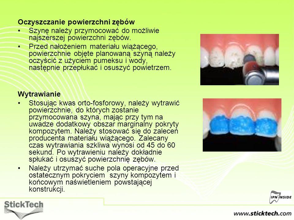 Oczyszczanie powierzchni zębów Szynę należy przymocować do możliwie najszerszej powierzchni zębów. Przed nałożeniem materiału wiążącego, powierzchnie