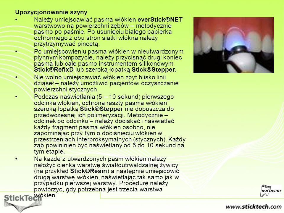 Upozycjonowanie szyny Należy umiejscawiać pasma włókien everStick®NET warstwowo na powierzchni zębów – metodycznie pasmo po paśmie. Po usunięciu białe