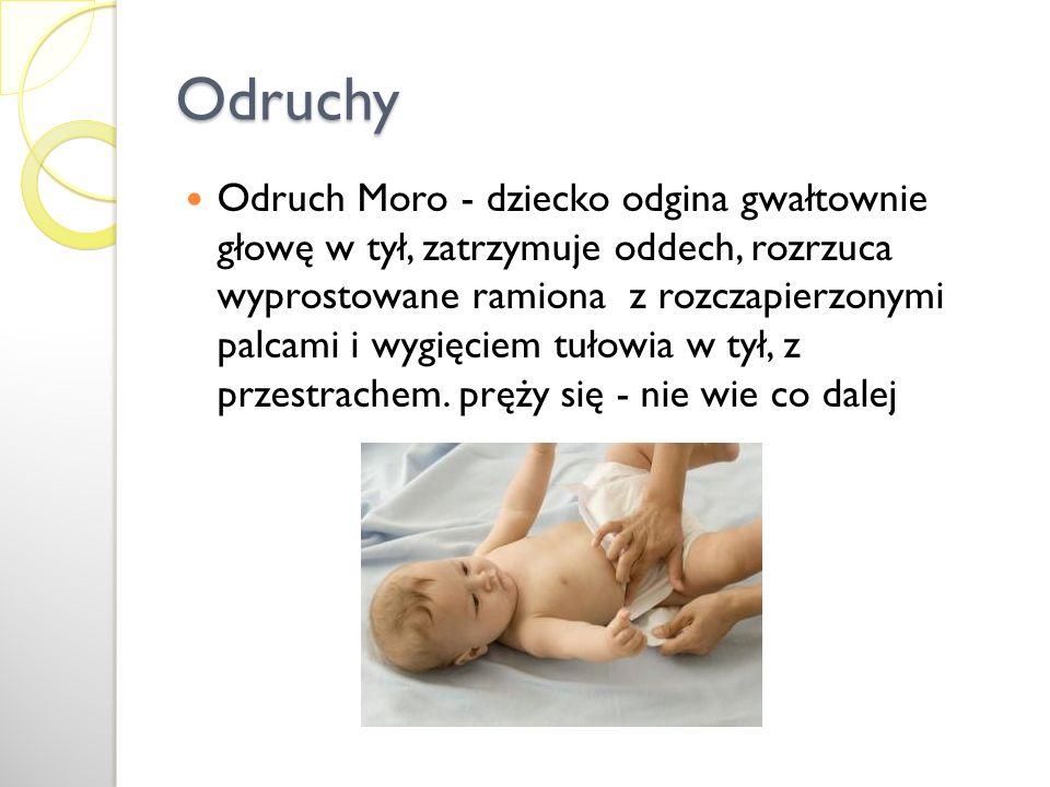 Odruchy Odruch Moro - dziecko odgina gwałtownie głowę w tył, zatrzymuje oddech, rozrzuca wyprostowane ramiona z rozczapierzonymi palcami i wygięciem t