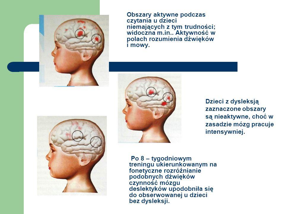 Obszary aktywne podczas czytania u dzieci niemających z tym trudności; widoczna m.in.. Aktywność w polach rozumienia dźwięków i mowy. Dzieci z dysleks