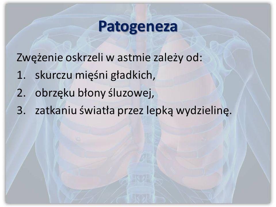 Postacie kliniczne 3. Astma zawodowa wywołana przez określony czynnik w pracy. 4. Astma wysiłkowa wyzwalana poprzez wysiłek na zimnym suchym powietrzu