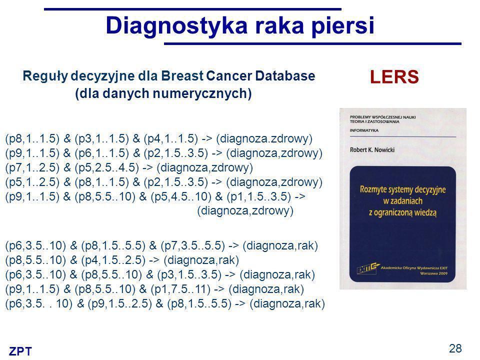 ZPT 28 LERS Diagnostyka raka piersi (p8,1..1.5) & (p3,1..1.5) & (p4,1..1.5) -> (diagnoza.zdrowy) (p9,1..1.5) & (p6,1..1.5) & (p2,1.5..3.5) -> (diagnoza,zdrowy) (p7,1..2.5) & (p5,2.5..4.5) -> (diagnoza,zdrowy) (p5,1..2.5) & (p8,1..1.5) & (p2,1.5..3.5) -> (diagnoza,zdrowy) (p9,1..1.5) & (p8,5.5..10) & (p5,4.5..10) & (p1,1.5..3.5) -> (diagnoza,zdrowy) Reguły decyzyjne dla Breast Cancer Database (dla danych numerycznych) (p6,3.5..10) & (p8,1.5..5.5) & (p7,3.5..5.5) -> (diagnoza,rak) (p8,5.5..10) & (p4,1.5..2.5) -> (diagnoza,rak) (p6,3.5..10) & (p8,5.5..10) & (p3,1.5..3.5) -> (diagnoza,rak) (p9,1..1.5) & (p8,5.5..10) & (p1,7.5..11) -> (diagnoza,rak) (p6,3.5..