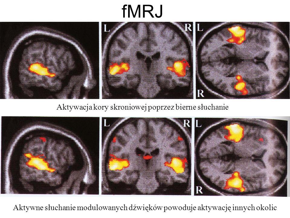 fMRJ Aktywacja kory skroniowej poprzez bierne słuchanie Aktywne słuchanie modulowanych dźwięków powoduje aktywację innych okolic