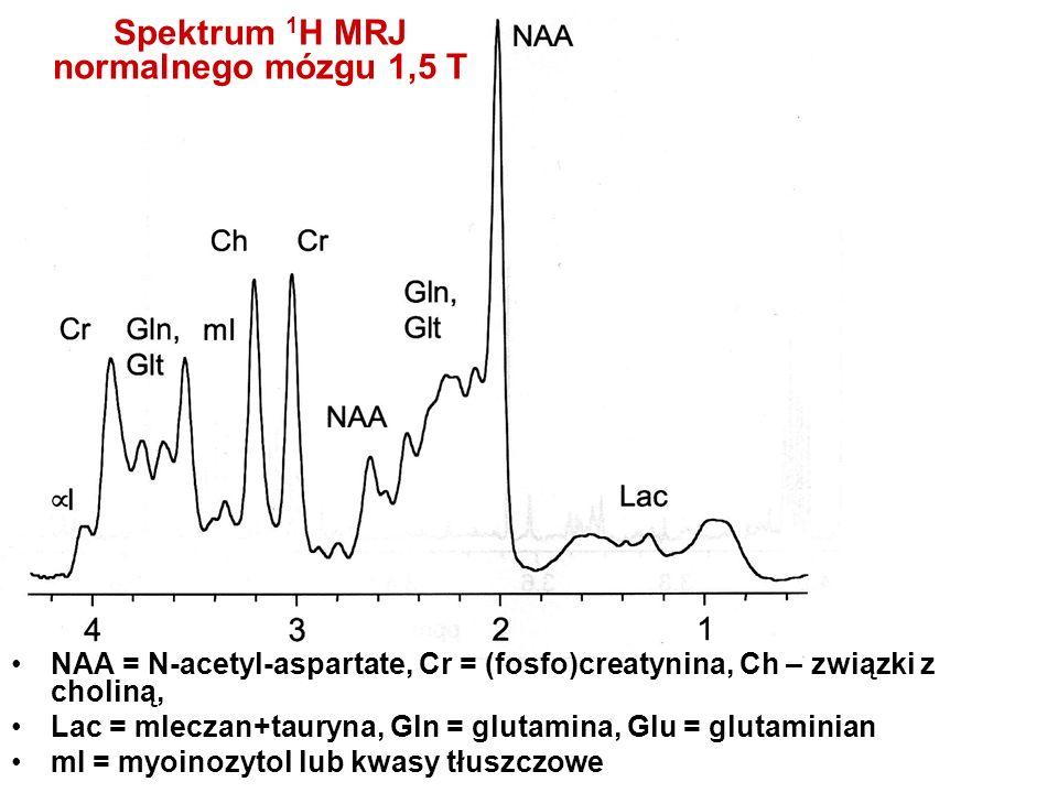 Spektrum 1 H MRJ normalnego mózgu 1,5 T NAA = N-acetyl-aspartate, Cr = (fosfo)creatynina, Ch – związki z choliną, Lac = mleczan+tauryna, Gln = glutami