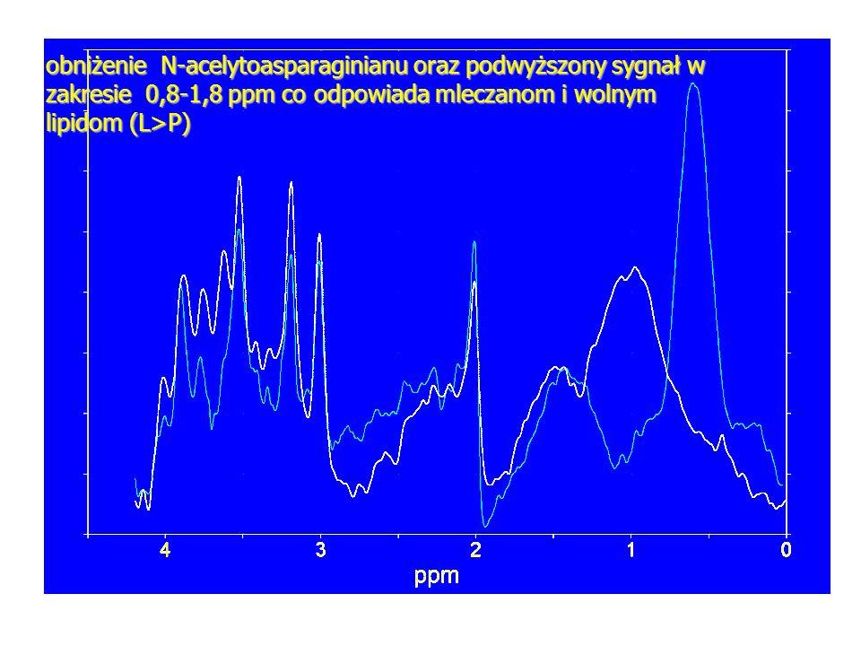 obniżenie N-acelytoasparaginianu oraz podwyższony sygnał w zakresie 0,8-1,8 ppm co odpowiada mleczanom i wolnym lipidom (L>P)